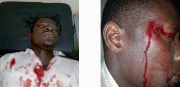 Des militants de Sonko tabassés par les « marrons du feu », voici les horribles images !