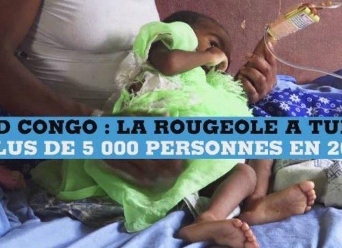 RD Congo : la rougeole fait plus de morts qu'Ebola